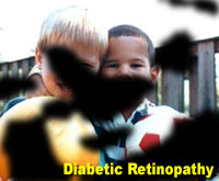 Simulation photograph: diabetic retinopathy