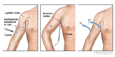 Sentinel lymph node biopsy of the skin. The first of three panels shows a radioactive substance and/or blue dye injected near the tumor; the middle panel shows that the injected material is followed visually and/or with a probe that detects radioactivity to find the sentinel nodes (the first lymph nodes to take up the material); the third panel shows the removal of the tumor and the sentinel nodes to check for cancer cells.