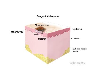 Stage 0 melanoma in situ; drawing shows skin anatomy with an abnormal area on the surface of the skin. Both normal and abnormal melanocytes and melanin are shown in the epidermis (outer layer of the skin). Also shown are the dermis (inner layer of the skin) and the subcutaneous tissue below the dermis.