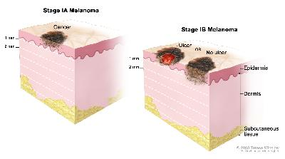 Two-panel drawing of stage I melanoma. The first panel shows a stage IA tumor that is not more than 1 millimeter thick, with no ulceration (break in the skin). The second panel shows two stage IB tumors. One tumor is not more than 1 millimeter thick, with ulceration, and the other tumor is more than 1 but not more than 2 millimeters thick, with no ulceration. Also shown are the epidermis (outer layer of the skin), the dermis (inner layer of the skin), and the subcutaneous tissue below the dermis.