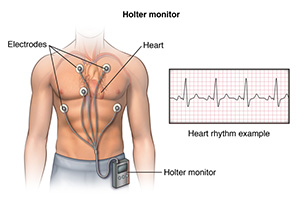 Illustration showing a male torso. Leads are attached to his chest. They are connected to a holter monitor that is clipped to the waistband of his pants.