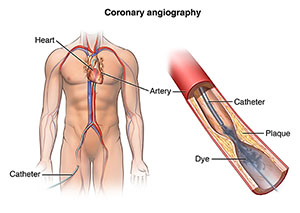 View of a man's body with a catheter inserted into the leg and running to an artery on the heart. Dye is injected.