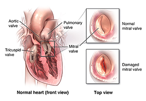 Illustration of a prolapsed mitral valve