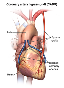 The heart and the part of the coronary artery where bypass is done