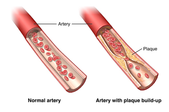 A normal and a diseased artery