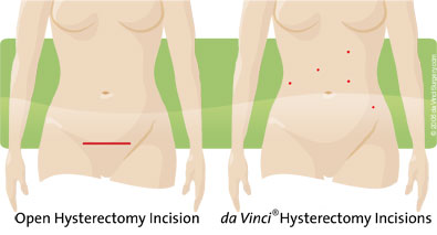da Vinci Robotic Surgery at Palomar Health, hysterectomy